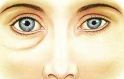 下眼睑下至术联合眼袋祛除术应用于眼部美学