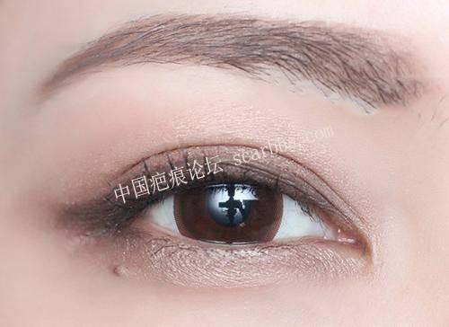 双眼皮手术后恢复期要注意护理不要急功近利[tag]