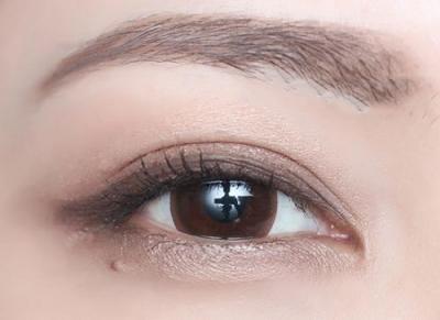 双眼皮手术后恢复期要注意护理不要急功近利