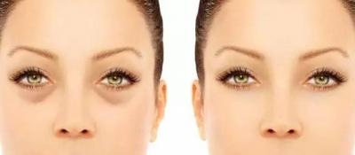 眼袋手术失败原因及修复三种方法