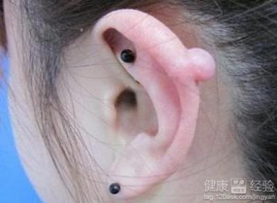 关于打耳洞和茶叶棍的联系