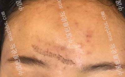 z 成形术在面部直线瘢痕整形修复中的应用效果