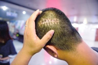 脱细胞异体真皮基质与自体头皮刃厚皮片复合移植手术