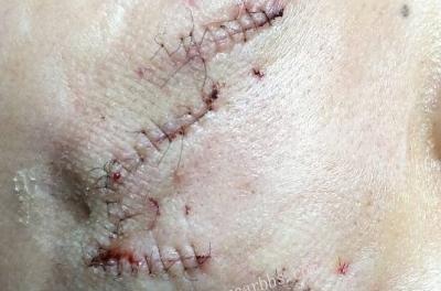 小儿面部外伤整形美容缝合术