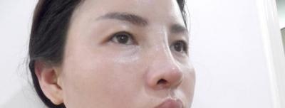 目前的医疗进行功能性鼻整形要了解