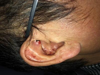 耳廓烧伤预防瘢痕的措施
