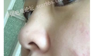 """M""形皮瓣法进行鼻翼整形手术"
