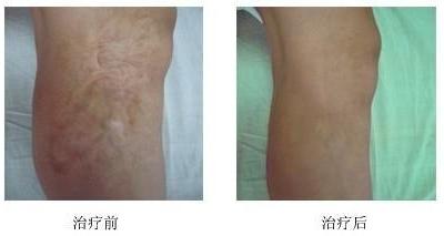 扩张后皮瓣修复面部疤痕的术中护理