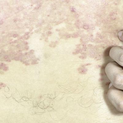 谈谈烧伤瘢痕整形手术患者临床护理效果体会