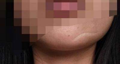 口外入路下颌角整形术四个关键技术问题