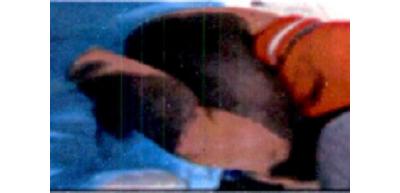 巨痣切除+中厚皮片游离移植术