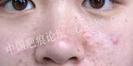 30 岁时长的痘痘,还叫青春痘吗[tag]