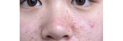 30 岁时长的痘痘,还叫青春痘吗