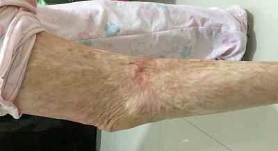 烧伤后瘢痕挛缩需要正视康复训练