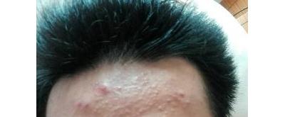 什么是肥大性疤痕或者疤痕疙瘩