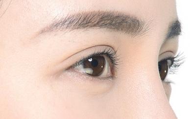 双眼皮整形手术前整形诶并发症你真的了解吗