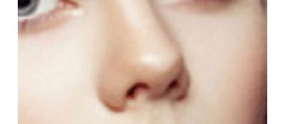 隆鼻假体如何选择?