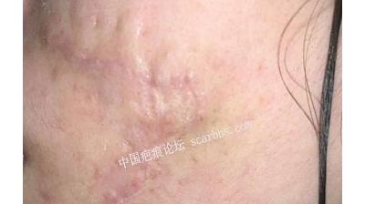浅小疤痕如何治疗