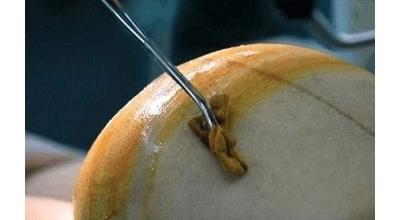 顺产及剖宫产后的护理