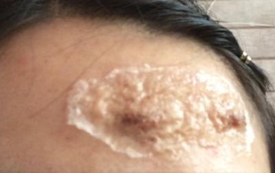 瘢痕体质处理外伤时要谨慎
