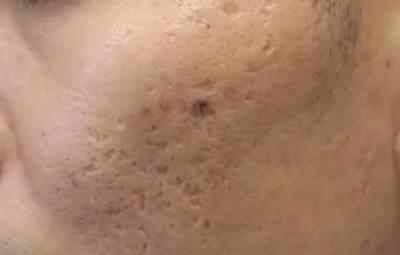 大学生治疗痤疮留下的疤痕的途径