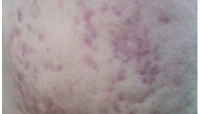 痘印、痘疤如何产生