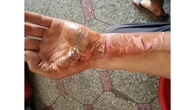 烧伤患者在康复阶段需要注意到