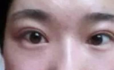 双眼皮手术过程体会