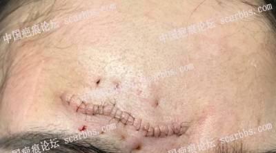 疤痕体质早预防
