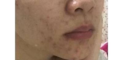 痤疮瘢痕治疗的研究进展